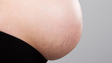 Stretch Marks/ whattoexpect