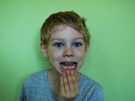 Tips for healthy teeth